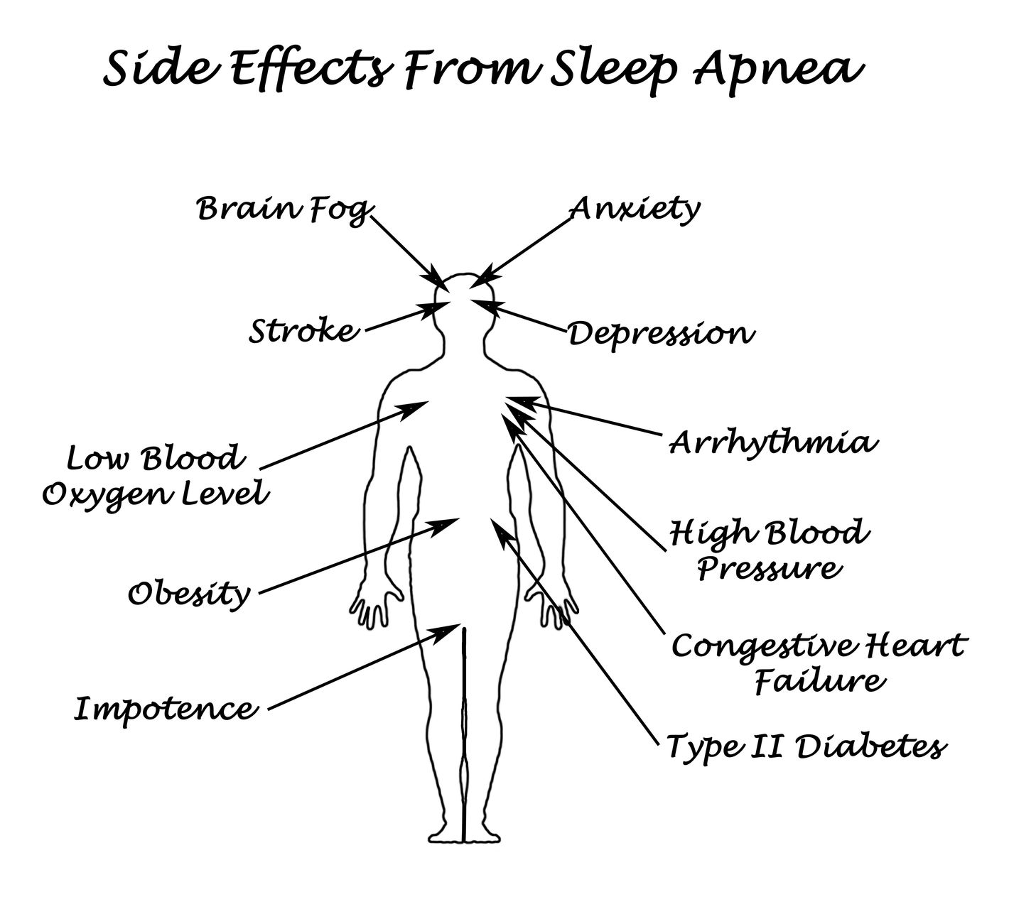 31164387 - sife effects from sleep apnea